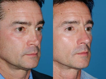 Revision rhinoplasty 334286