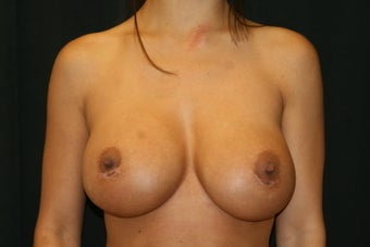Breast Revision - Capsular Contracture and Bottoming Out of Right Breast
