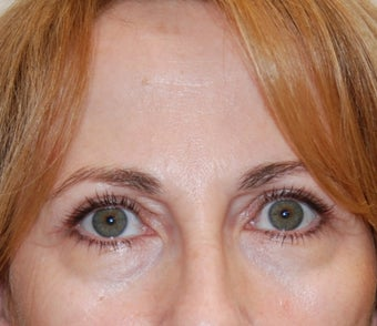 Upper Eyelid Blepharoplasty (Eyelid Lift) after 102881