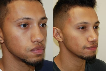 Rhinoplasty Surgery. 1 month post-op. before 606404