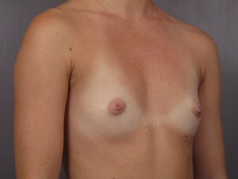 Breast Augmentation before 467311