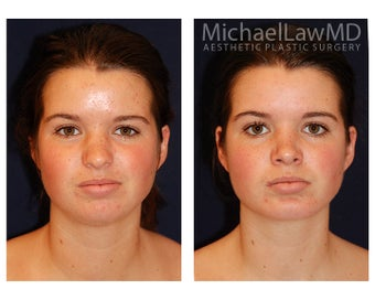 Chin Liposuction before 494435