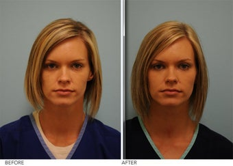 Facial Fillers for cosmetic Enhancement before 362593