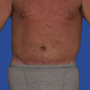 Abdominoplasty after 254382