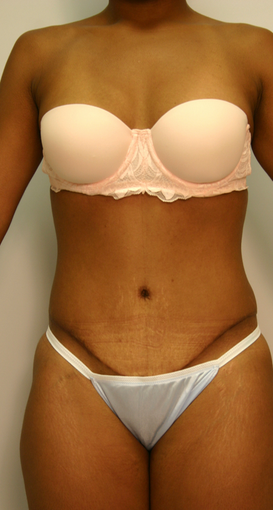 Abdominoplasty after 534256