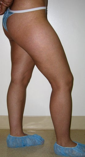 liposuction of thighs for women 583569