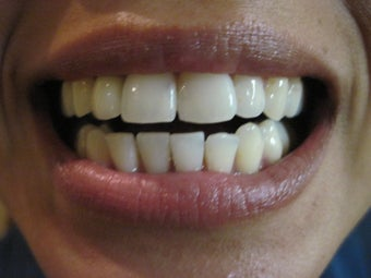 Zoom Teeth Whitening after 545985