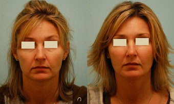 Injectable Fillers (Restylane/Perlane) before 136767