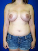 Breast Augmentation with a Benelli Lift after 124936