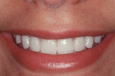 Porcelain Veneers after 379804