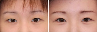 Double Eyelid Surgery - Suture Technique before 609875