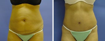 Tummy Tuck with liposuction before 8963