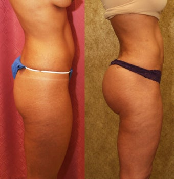 Brazilian buttock augmentation with fat grafting to the buttocks with liposuction in Los Angeles after 583430