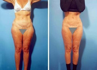 Liposuction before 636262