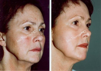 Non-Surgical Face Lift- Exoderm  before 243001