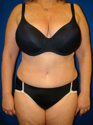 Tummy Tuck Surgery (Abdominoplasty) after 161996
