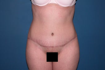 Tummy tuck with liposuction of the flanks after 247948