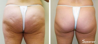 Velashape, after 5 treatments after 45489