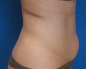 Cellulite Treatment before 362285