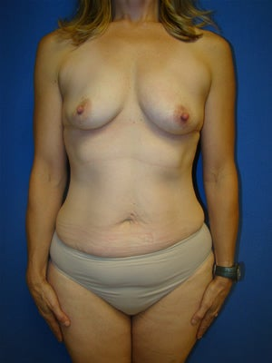 Extended Tummy Tuck (abdominoplasty) with Breast Augmentation Surgery before 127264