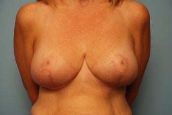 Bilateral Breast Lift after 259124