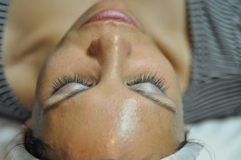 Chemical Peel before 607354