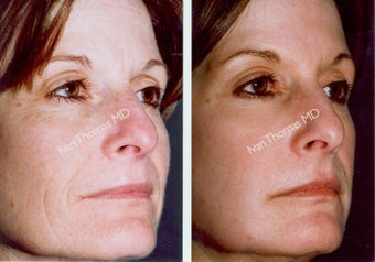 Non-Surgical Face Lift- Exoderm  before 242967