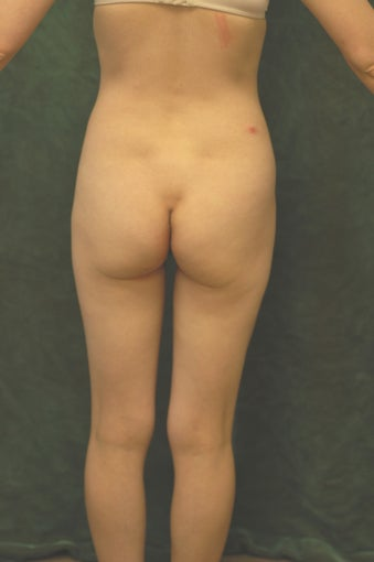 Women's Buttocks Augmentation 518146