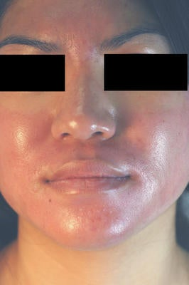 Photodynamic Therapy for Acne after 86366