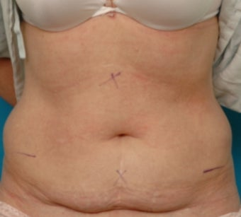 Coolsculpting before 371019