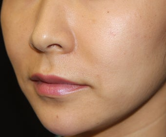 Radiesse Chin Implant / Augmentation after 355475