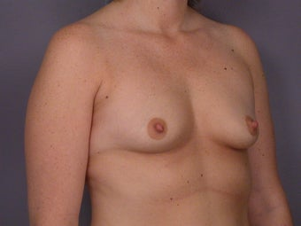 Breast Lift / Breast Augmentation  before 290988