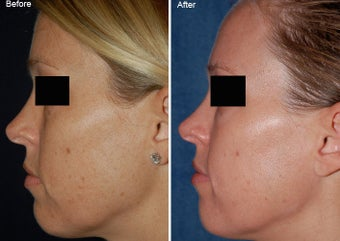 Fraxel Laser Resurfacing before 97893
