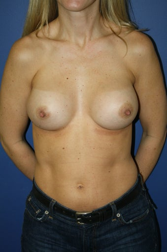 transaxillary endoscopic bilateral breast augmentation after 285067