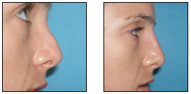 Non-Surgical Nose Job before 627870