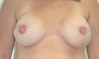 Breast Reconstruction after 517542