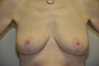 Breast Lift after 329750