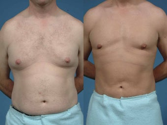 Male liposuction before 135573