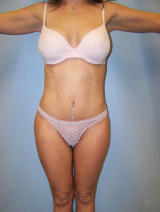 Tummy Tuck Surgery after 124891