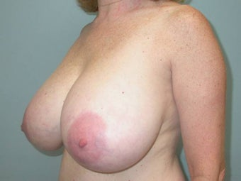 Breast Reduction before 148699