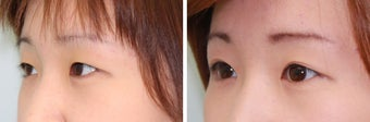 Double Eyelid Surgery - Suture Technique after 609875