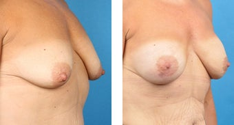Breast Reconstruction: One-Stage Breast Reconstruction 561811