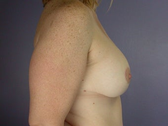 Breast Lift / Breast Augmentation after 291191