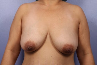 Breast Lift / Breast Implant before 301654