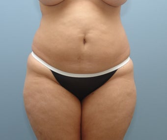 Liposuction to Full Abdomen and Full Back before 426734