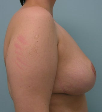 Breast Reduction after 616401
