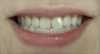 Zoom! Laser Whitening after 326051