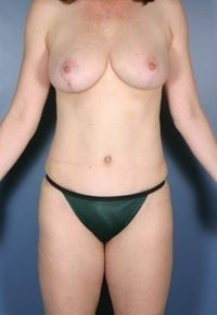 Breast Lift, Liposuction, Mommy Makeover, Tummy Tuck after 374174