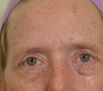 Pearl Laser Treatment after 102779