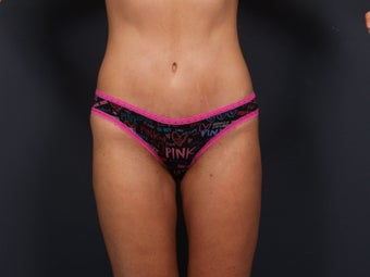 Tummy Tuck after 462576